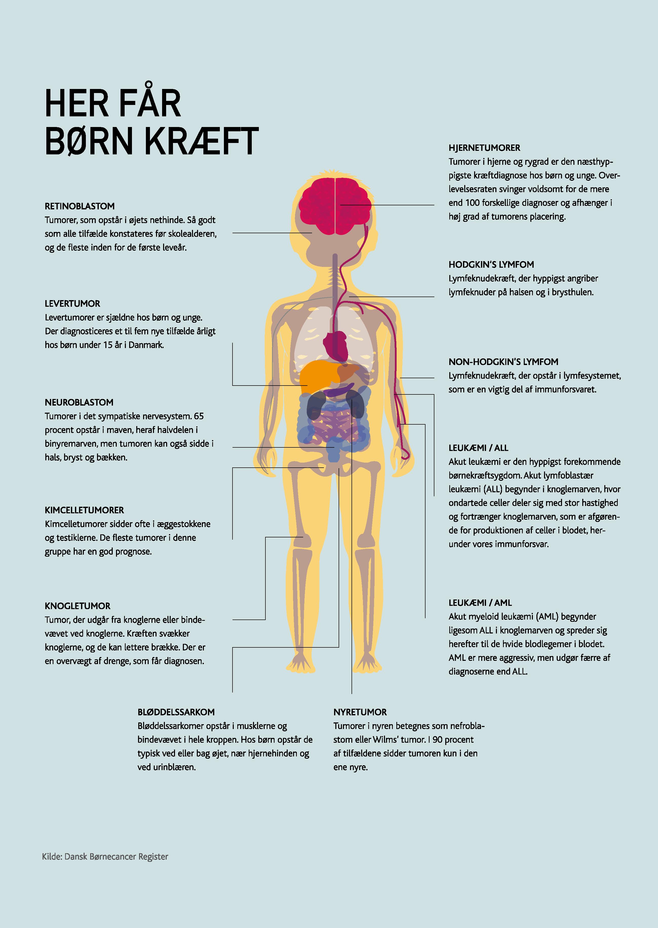 Her får børn kræft(s10)
